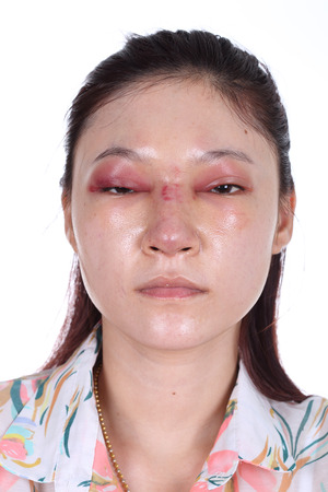 woman with nose and eye swelll after nose job plastic surgery