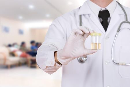 doctors hand holding a bottle of urine sample in hospital background