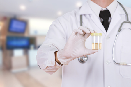 doctors hand holding a bottle of urine sample in hospital background