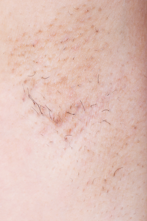 armpit of woman with grown hair