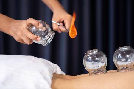 primo piano tazza di vetro con fuoco per il trattamento di coppettazione sulla schiena femminile Archivio Fotografico