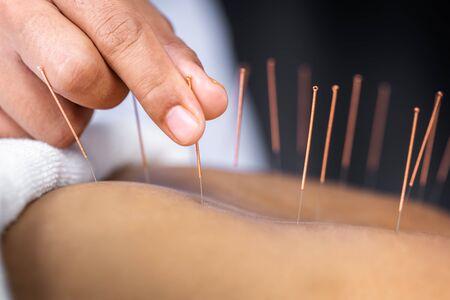 Primer plano de la espalda femenina senior con agujas de acero durante el procedimiento de la terapia de acupuntura