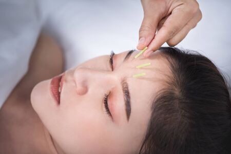 young woman undergoing acupuncture treatment on head Banco de Imagens