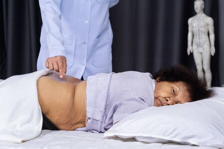 senior female back with steel needles during procedure of the acupuncture therapy