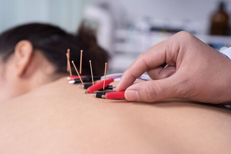 young woman undergoing acupuncture treatment with electrical stimulator on back