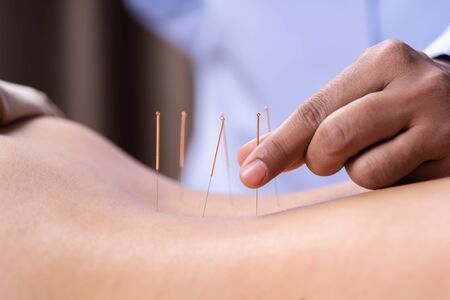 close up woman undergoing acupuncture treatment on back Stockfoto