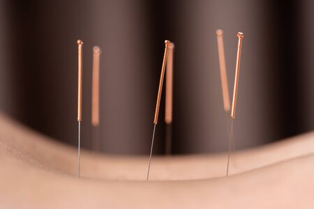 close up woman undergoing acupuncture treatment on back Standard-Bild