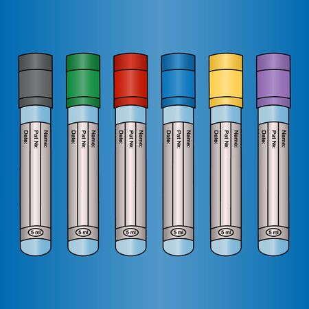 Color vector illustration - empty vacuum tubes for several types of studies of venous blood tests. Caps of different colors. On the tube information: name, pat?, date. Isolated blue background. Medical topics.