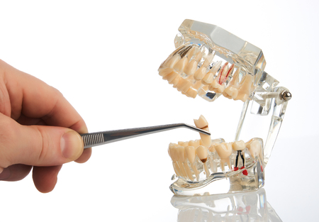 Dentist hands pulls out a tooth with dental forceps from jaw model over white background, close-up. Student learning teaching model showing teeth, roots, gums, gum disease, tooth decay and plaque.