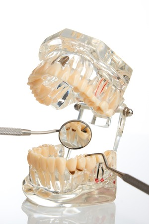 Orthodontic jaw model and dentist tool, dental mirror isolated on white background, close-up.  Student learning teaching model showing teeth, roots, gums, gum disease, tooth decay and plaque. Stock Photo