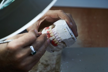 Dental technician working with articulator in dental laboratory, close-up. Dentist hands holds prosthesis on a plaster jaw his lab Archivio Fotografico
