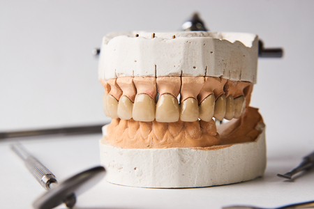 Dental gypsum model in dentist laboratory office close-up.