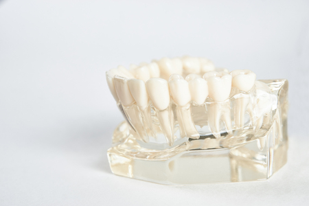 Dental jaw model against white background with copy space. Dentist dental prosthetic teeth, gums, roots close-up. Studying dental diseases concept Imagens