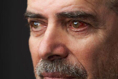 Close-up annoyed red blood eye of senior man.