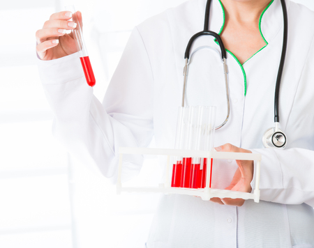 Female doctors hands holding test tubes with red liquid photo
