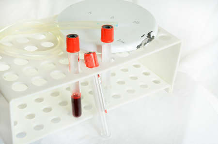 Blood sampling and analysis in a biochemical laboratory on a light background. A plate with a broken edge.
