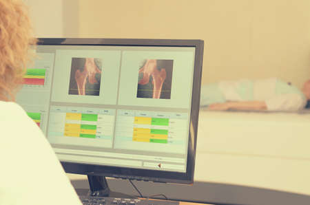 A woman x-ray examines the results of densitometry