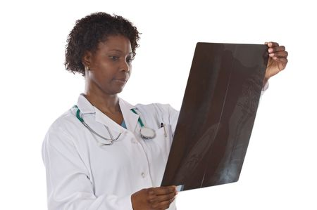 Woman doctor whit radiography a over white  photo
