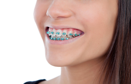 fix jaw: Attractive young woman with brackets isolated on a white backgroung