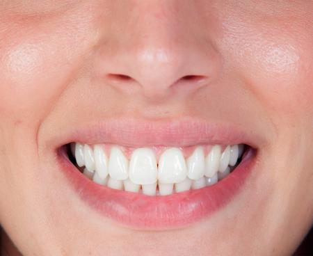 Sonrisa perfecta de una mujer joven y bella. los dientes cercanos