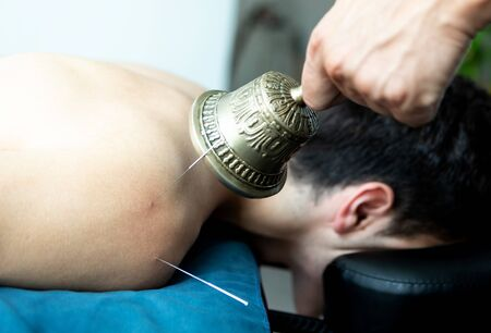 Handsome young man in an acupuncture and sound therapy