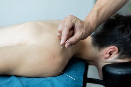 Handsome young man in an acupuncture therapy Фото со стока