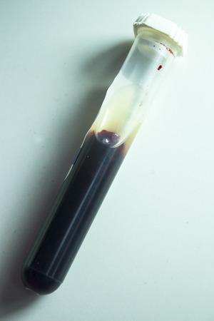 sample: Coagulated blood sample for analysis