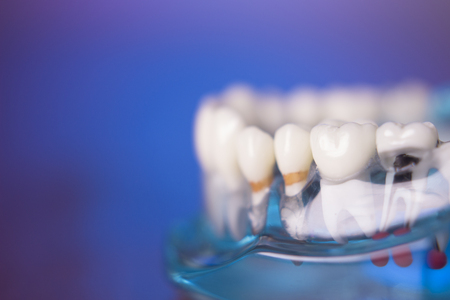 health problems: Denture for dentistry students with different health problems