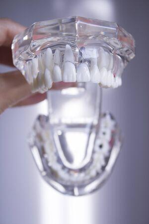 falso: False teeth sample for dentists Foto de archivo