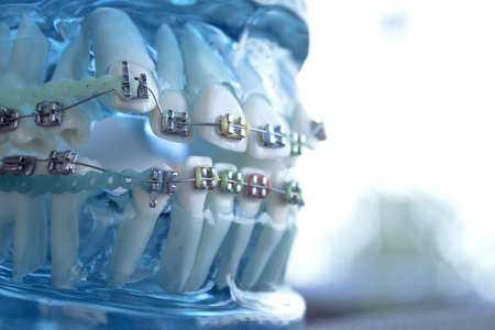 Denture for students with classic dental metal orthodontics. Color aesthetic couplings.