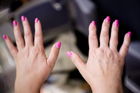 Hände einer Frau mittleren Alters mit Problemen von Rheuma, Arthrose und Hautunreinheiten