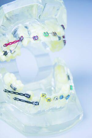 Model denture with metal orthodontics. No people