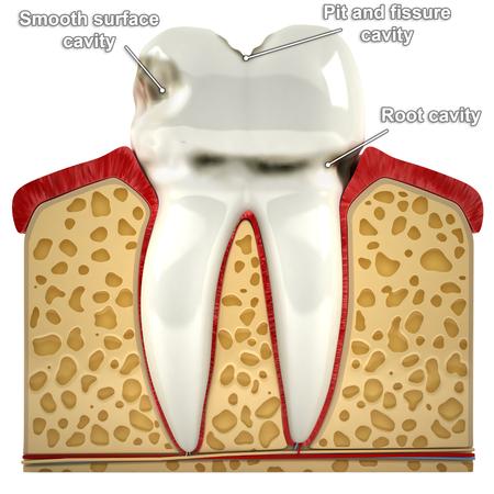 Menschliche Zahn, mit Arten von Karies (3D-Modell) Standard-Bild - 33450064