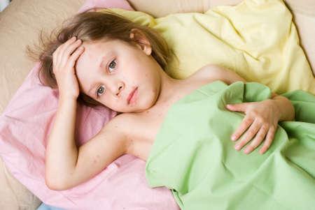 varicela: La ni�a cay� enferma con varicela Foto de archivo