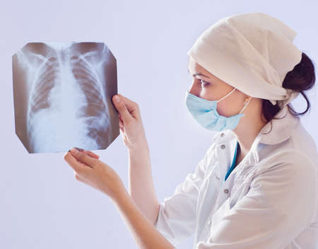 The doctor looks lung X-ray image photo