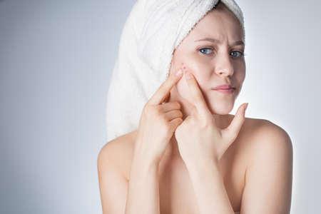 kobieta jest niezadowolona ze skóry na twarzy. Młoda kobieta w ręczniku na głowie