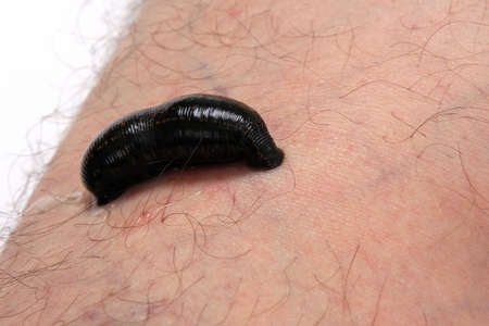 leech: Blood sucking leech on a mans leg. Isolated on white background. Alternative medicine.