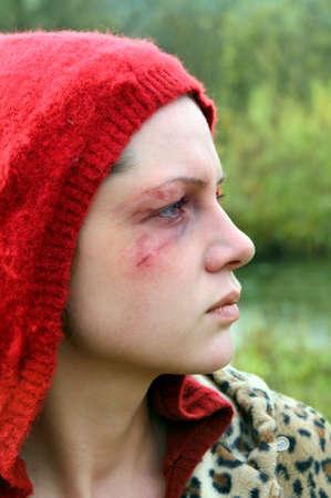 violencia intrafamiliar: V�ctima de violencia dom�stica, una joven abusada.