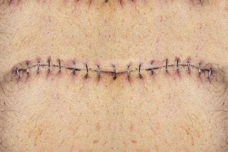 Stitches on belly Standard-Bild