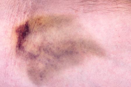 hematoma: Closeup on a bruise Stock Photo