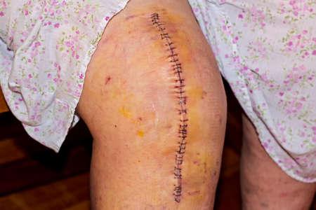 Litteken van een knieprothese Stockfoto
