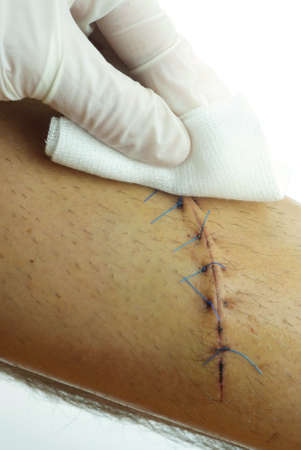 Closeup of a cleaning stitched wound on a male leg  10 stitches, 15 cm long  Editorial