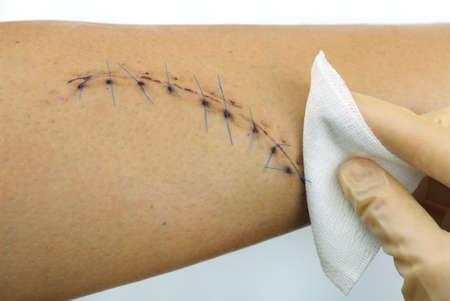 Nahaufnahme einer Reinigung genähten Wunde an einem männlichen Bein 10 Maschen, 15 cm lang Editorial