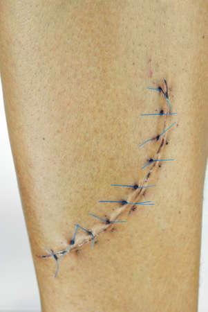 herida: Primer plano de una limpieza cosido la herida en una pierna masculina 10 puntos, a 15 cm de largo