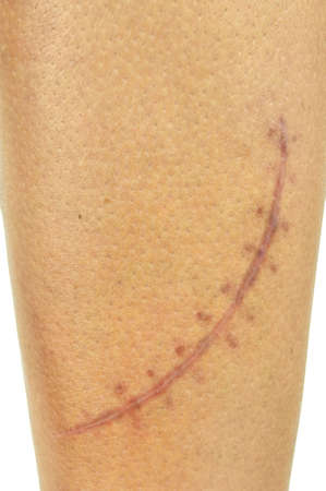 Close-up of a big, fresh scar on a male leg  Two months after injury, 15 cm long, 10 stitches