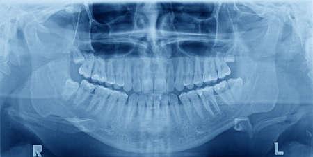 caries dental: Panorámica imagen de rayos X de los dientes. Problema con la muela del juicio.