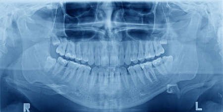 xray: Panoramic x-ray image of teeth. Problem with wisdom tooth.