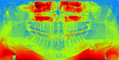 molares: Imagen de la radiografía panorámica de dientes. Problema con la muela del juicio.