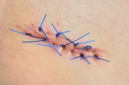 biopsia: Primer plano de la herida cosida despu�s de la biopsia de la piel en la mujer