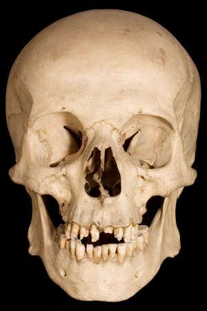 Human braincase on black background